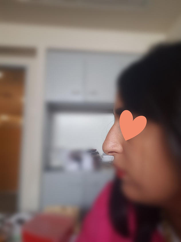 """""""האף נותר פחות או יותר כשהיה"""". צ, אחרי ההזרקה"""